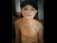 Un baietel a inceput sa planga cand si-a vazut cicatricile. Gestul emotionant al tatalui sau a strans 1 milion de like-uri