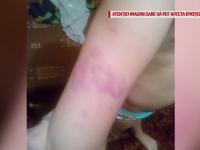 Noi agresiuni in cazul copiilor cu dizabilitati abuzati la scoala ies la iveala. Imaginile facute publice de mama unui elev
