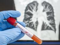 Țara europeană care testează toată populația pentru noul coronavirus