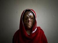 Arse cu acid si mutilate pe viata! Drama dureroasa a femeilor din Pakistan!