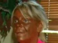 Cum arata acum cea mai bronzata femeie din lume, la 3 luni dupa ce a socat SUA cu aceasta poza.VIDEO