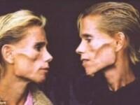 Povestea dramatica a gemenelor anorexice care si-au prezis moartea. La 42 de ani cantareau 25 de kg