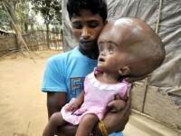 Cum arata in prezent fata de trei ani din India care sufera de o forma rara de hidrocefalie