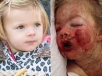 Reactia provocata de un medicament pe care il iau toti copiii. Fetita de 2 ani a stat 10 zile la Terapie Intensiva