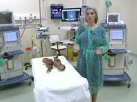 ANIMATIE GRAFICA: Siamezele nascute in Brasov au fost operate cu succes. Medicii, uimiti de pozitia nefireasca a copiilor