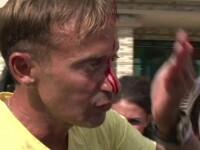 Radu Mazare s-a umplut de sange in timp ce-si prezenta decapotabila. Iubita lui,