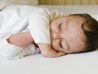 Copilul cu cea mai grava forma de varicela. Ce i-au spus medicii, initial, mamei baietelului de 2 ani