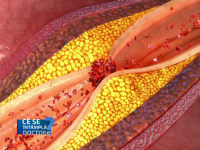 Cum poate fi rezolvată problema arterelor astupate printr-o intervenție fără anestezie