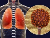 Studiu: Motivul pentru care unii pacienți infectați cu COVID-19 suferă forme mai grave de boală