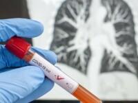 Coronavirusul se transmite prin alimente? OMS a dat raspunsul asteptat de tot globul