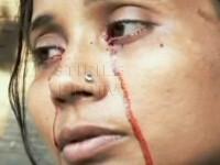 O femeie din India plange cu lacrimi de sange! FOTO