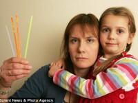 Bratara primita cadou i-a cauzat unei fetite de 4 ani arsuri grave pe cornee. Cum a fost posibil