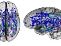 STUDIU. Diferentele dintre creierul femeilor si cel al barbatilor. La ce capitol sunt mai eficiente