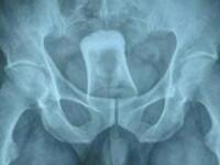 Ce au descoperit medicii chinezi despre un barbat dupa ce i-au facut o radiografie. FOTO