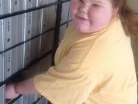 A slabit o treime din greutatea corpului ei dupa o operatie care i-a salvat viata. Cum arata acum fetita de 13 ani. FOTO