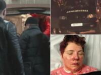 Cinci femei din Botosani au fost batute crunt si jefuite. Un tanar ofera recompensa pentru gasirea celui care i-a atacat mama