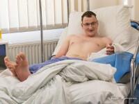 Transplant in premiera mondiala. Un barbat din Polonia, nascut fara o mana, a primit un brat de la o persoana decedata