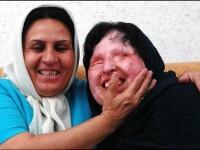 Ai putea sa faci la fel? Decizia surprinzatoare a femeii din Iran care a fost orbita cu acid