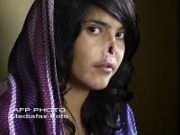 Fata afgana fara nas si fara urechi. Afla povestea fotografiei celebre