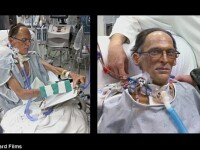 Caz medical uluitor: un barbat traieste FARA INIMA. Cum circula sangele prin corpul lui. VIDEO