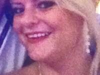 Mutilata de o invitata la propria ei nunta. Motivul pentru care mireasa are nevoie acum de reconstructie faciala. FOTO