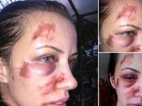 Drama unei tinere din Tulcea, batuta frecvent de fostul iubit. Ce raspuns a primit cand l-a reclamat la politie