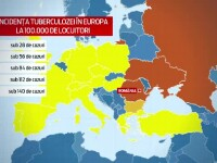 Peste 15.000 de cazuri noi de tuberculoza, in Romania. Aparatura moderna care depisteaza virusul in doua ore