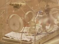 In ce stare se afla bebelusul de trei zile de la spitalul Marie Curie, separat vineri de fratele lui siamez