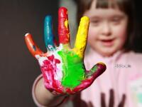 Ministrul Sanatatii: Impreuna cu ministrul Muncii am luat decizia de a anula ordinul cu privire la copiii cu sindrom Down