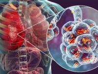Care sunt beneficiile reale ale vaccinului gripal și cum ne ferim de infecții