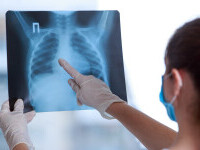 La ce complicații se poate ajunge în urma unei pneumonii COVID-19