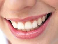 Efectele spectaculoase ale laserului dentar in tratamentul bolii parodontale