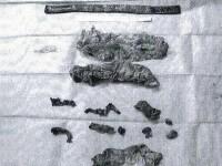 Ce au descoperit medicii in trupul unui barbat din Germania.