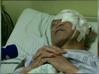 Un barbat din China a ajuns la spital cu un cui in cap. Ce au declarat medicii