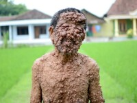 Trupul unui barbat, acoperit de sute de tumori, dupa o interventie banala. GALERIE FOTO