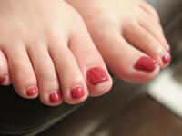 O femeie din Anglia si-a pierdut unghiile de la picioare pentru ca s-a dat cu oja timp de 20 de ani