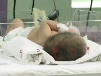 Tânără însărcinată, bătută îngrozitor de soţ. Bebeluşul, la terapie intensivă