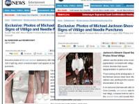 Picioarele lui Michael Jackson, distruse de vitiligo si perfuzii! VEZI FOTO