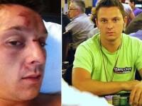 FOTO: A fost MUTILAT pentru ca a avut curajul sa catige 10 milioane la poker. Cati bani a pierdut?