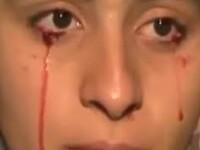 Oameni care cred ca sunt morti sau care plang cu lacrimi de sange. Top 3 afectiuni medicale bizare