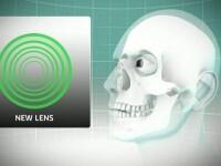 Ochelarii ar putea deveni o amintire. Operatia de 15 minute care corecteaza problemele de vedere