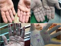 Imagini greu de privit cu medicii care poartă combinezoane anti Covid-19. Cum arată mâinile lor