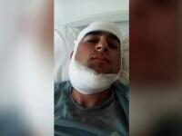 Bătaie într-o comună din Vaslui, după o partidă de fotbal. Un tânăr de 19 ani, desfigurat