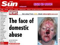 IMAGINE DE GROAZA! Asa arata o femeie dupa ce a fost agresata 90 de minute!