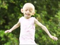 Fetita de 7 ani, in corp de bunica! Imbatraneste de 8 ori mai repede