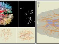 Exploreaza-ti creierul cu Google Maps