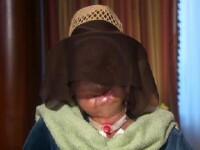 Femeia desfigurata de un cimpanzeu acum 2 ani a primit o noua faţă