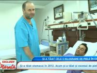Marius Stoica, barbatul care a slabit spactaculos, a scapat si de excesul de 5 kilograme de piele de pe abdomen