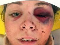 Un selfie i-a salvat viata. Prezenta de spirit a unei femei batute crunt de fostul iubit, dupa ce s-a trezit din coma