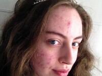 Sufera de o forma severa de acnee si nu iese din casa fara machiaj. Cum arata tanara care a castigat un concurs de frumusete